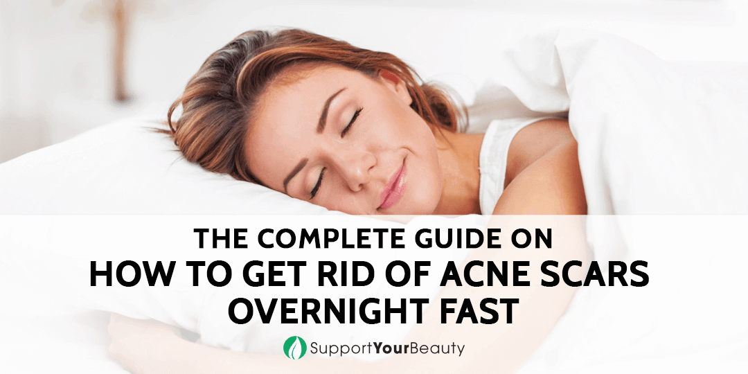 How To Get Rid Of Acne Scars Overnight Fast (Updated 2019