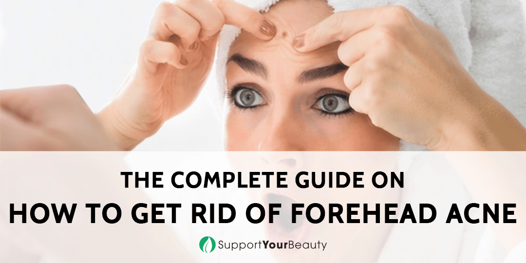 How To Get Rid Of Forehead Acne