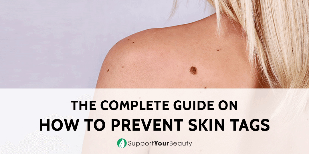 How To Prevent Skin Tags