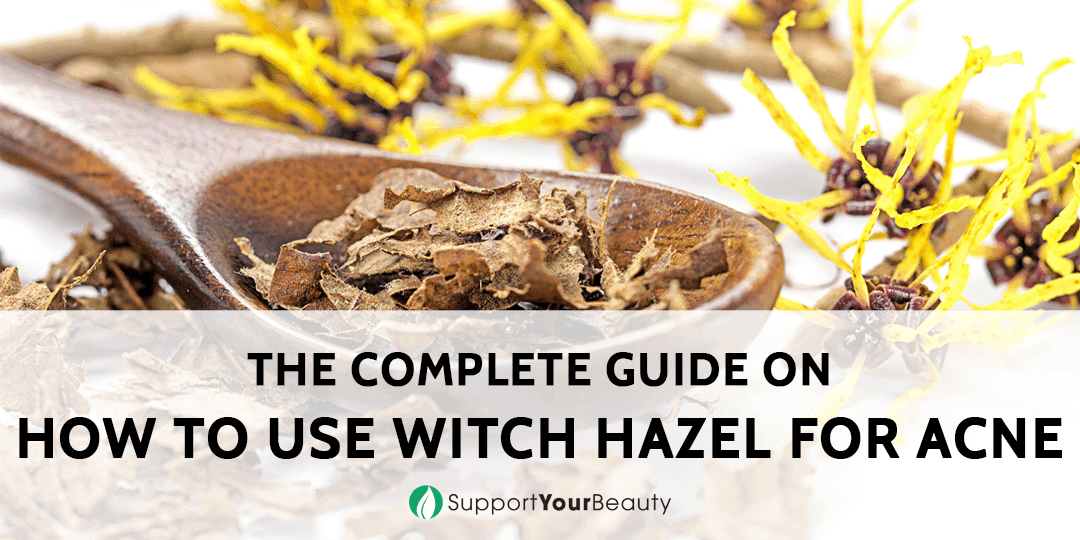How To Use Witch Hazel For Acne