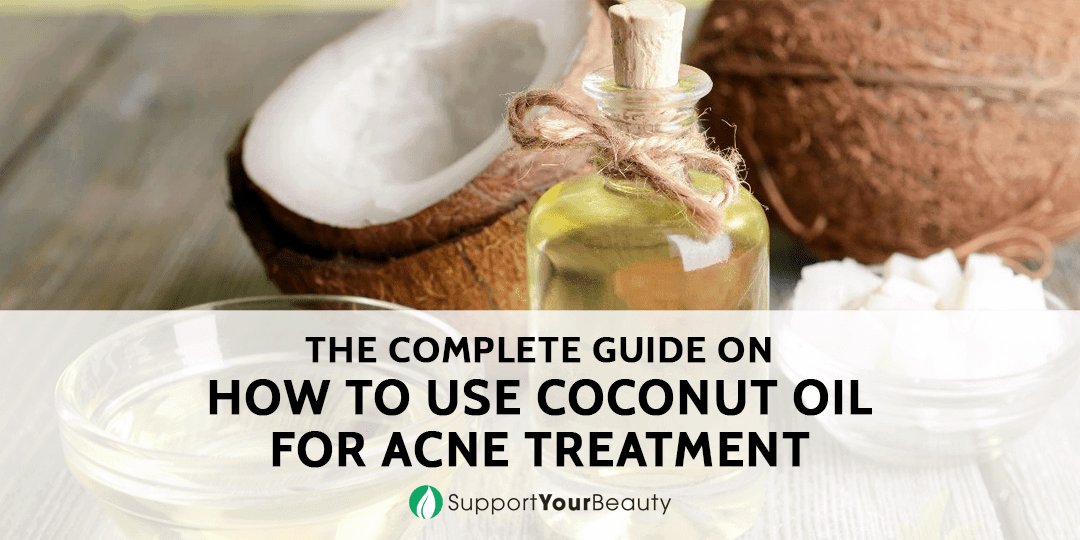 How to Use Coconut Oil for Acne Treatment