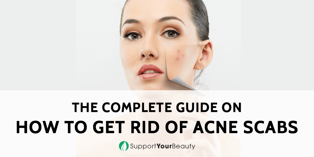 how to get rid of your acne