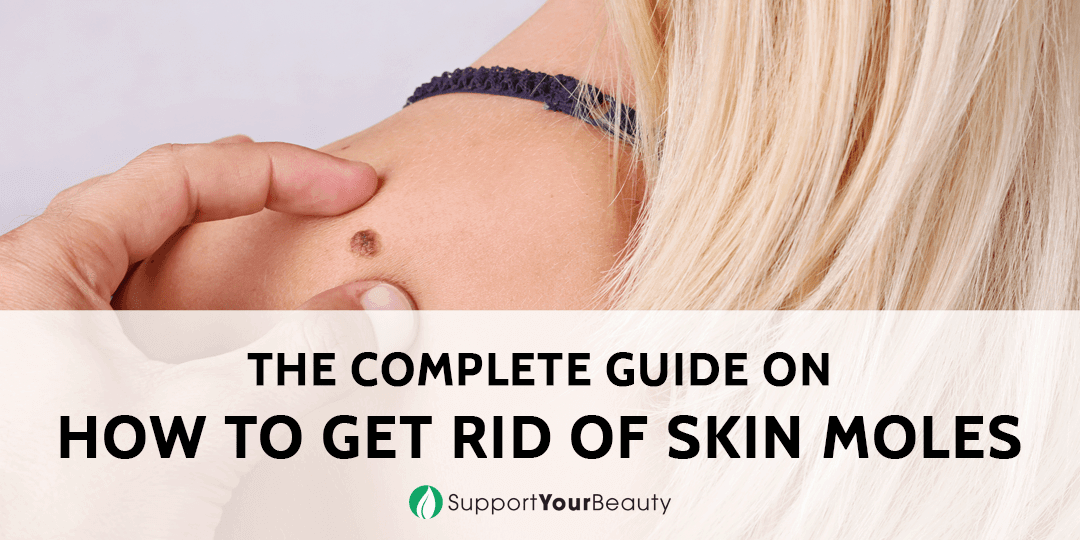 How to Get Rid of Skin Moles