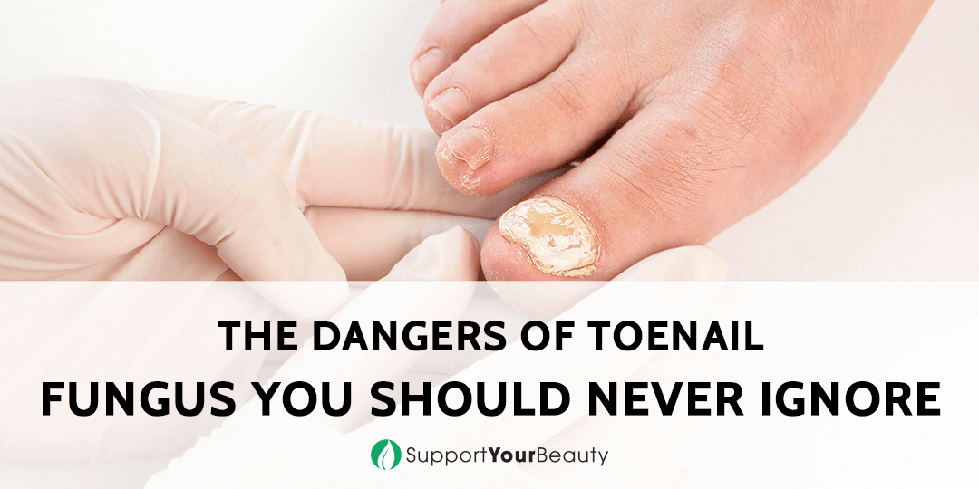 The Dangers of Toenail Fungus You Should Never Ignore