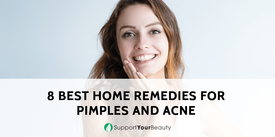 Best Home Remedy for Pimples and Acne