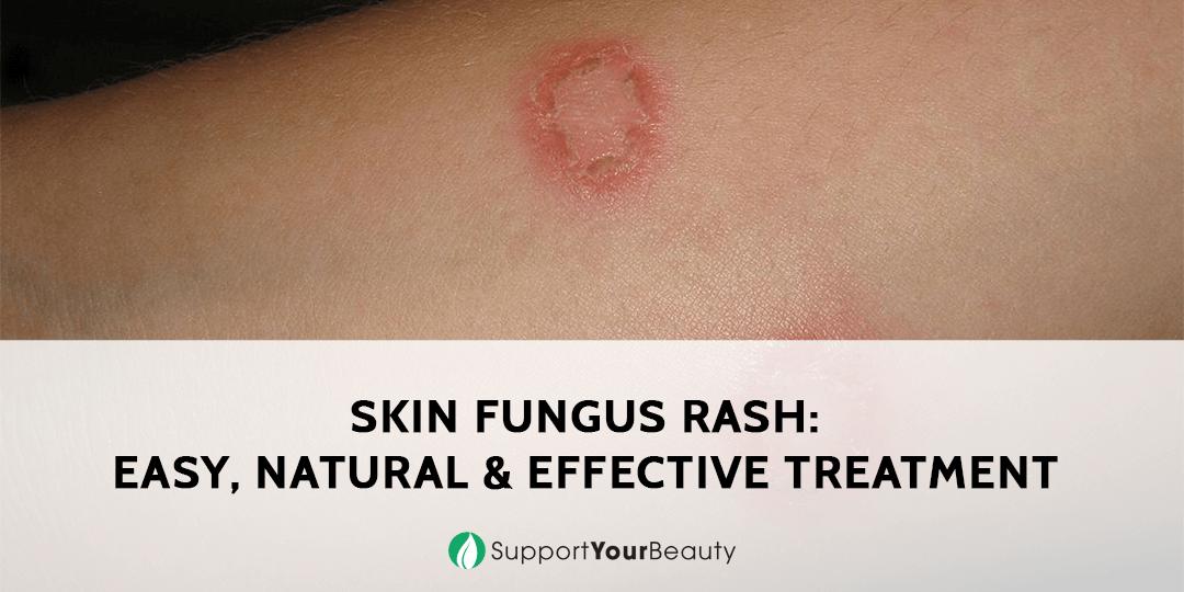 Skin Fungus Rash