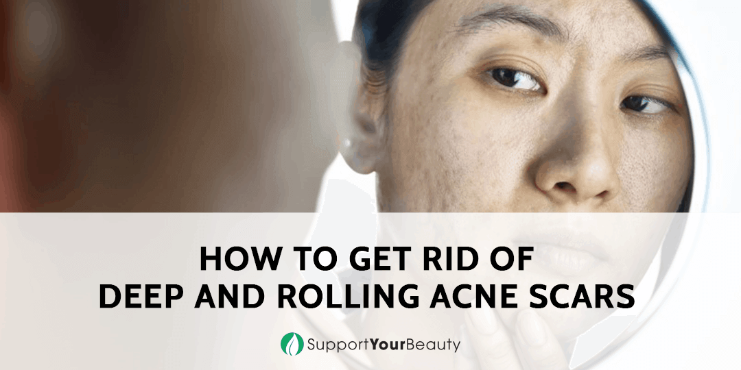 How to Get Rid of Deep and Rolling Acne Scars